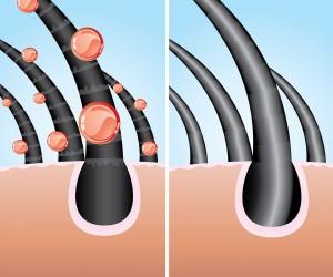 تم ايجاد حل متكامل وطبيعي للصلع وتساقط الشعر - اضغط هنا للمزيد