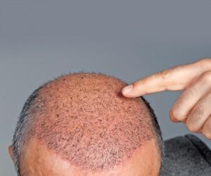 قبل الاقدام على زراعة الشعر إقرأ هذا الخبر