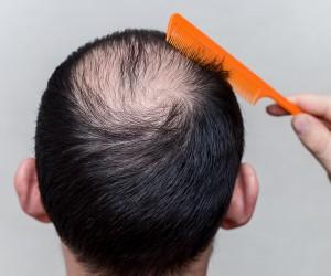طريقة لاسترجاع الشعر بدون أطباء وبدون عمليات جراحية خلال ١٤ يوم