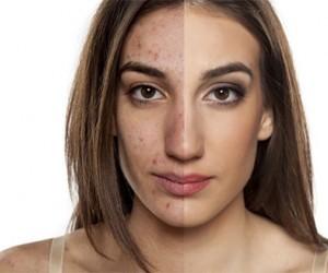 وداعاً لعيوب الوجه - نتيجة مضمونة 100% من أول مرة!