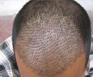 بهذه الطريقة الطبيعية و العضوية ستسترجع شعرك الأصلي من جديد