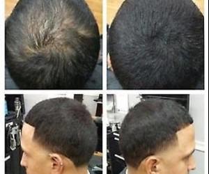 طريقة سريعة وطبيعية وافضل من زراعة الشعر - إضغط هنا للتفاصيل