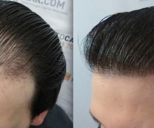 تعرف على تجربتي السحريه فى القضاء على الصلع بدون زراعة الشعر